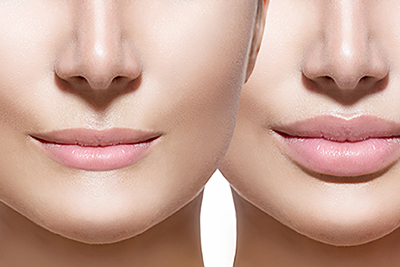LIPS ENHANCEMENT / MODELLING