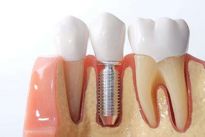 New Dental Implantologist available at Top Medical Clinic!